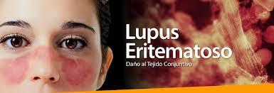El lupus: cuando tu cuerpo se vuelve contra ti mismo.