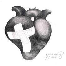 Miocardiopatía alcohólica: la dilatación del corazón
