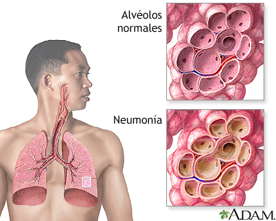 Árbol respiratorio normal y con neumonía