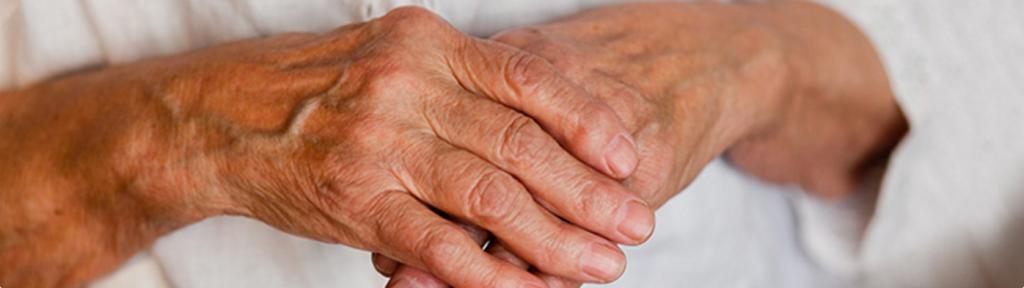 Artritis degenerativa de las manos