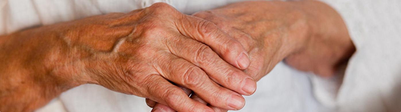 Artritis: algo más que reúma